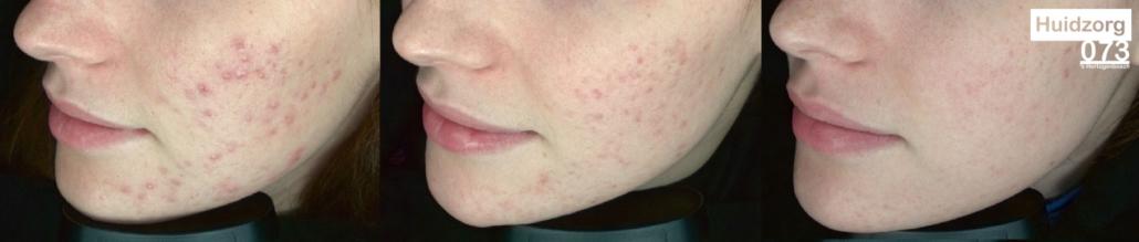 resultaat acnebehandeling