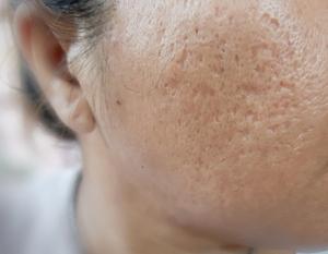 boxcar scars een vorm van acne littekens