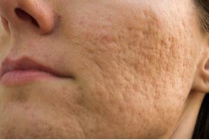 rolling scars door acne