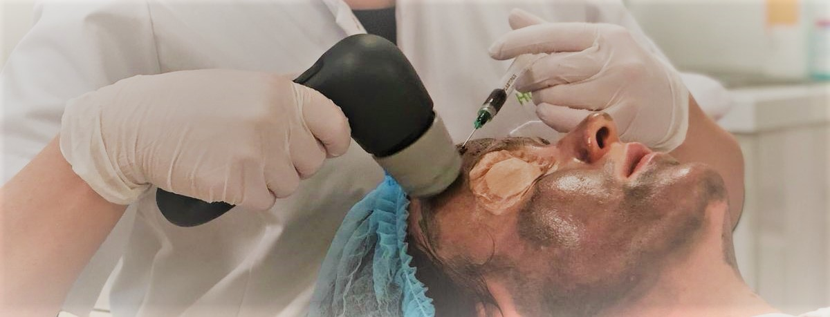 sebacia acnebehandeling