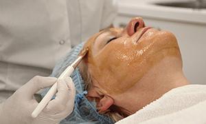 Huidverjonging behandeling door chemische peeling