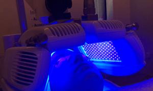 Ledtherapie voor huidverjonging